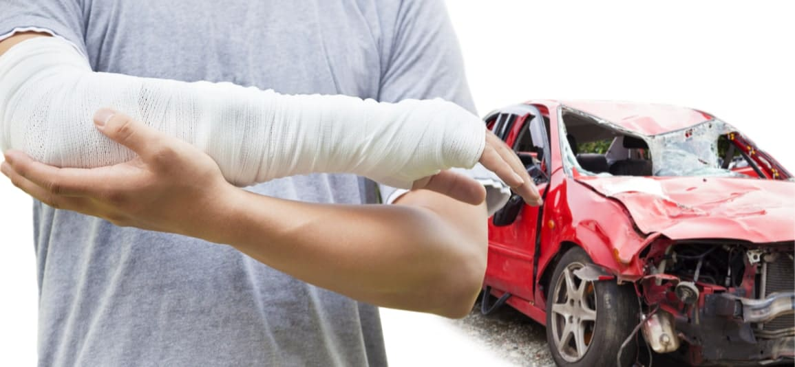 man with a broken arm injury after an auto accident in South Florida
